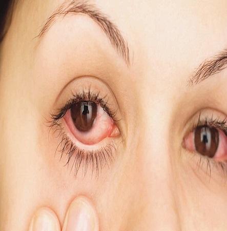 oculistas alergias ojos coruña